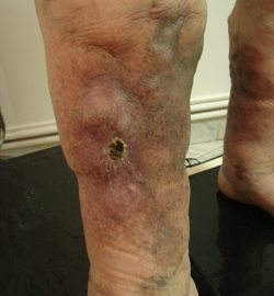dermatita de staza venoasa tratament