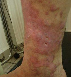eczema-varicoasa-poze-imagini
