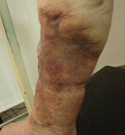 tratamentul venelor varicoase în petropavlovsk kamchatsky