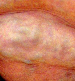 sindrom-martorell-operatie-clinica-varice-turkalem