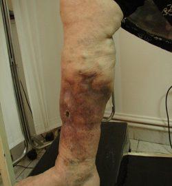 tratament-dermatita-staza-poze