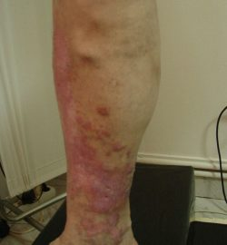tratament-eczema-varicoasa-bucuresti