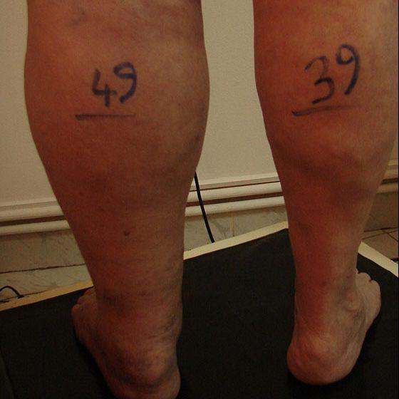 vasele interne varicoase pe picioare