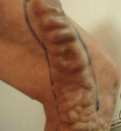 tratamentul venelor varicoase în kamensk ural