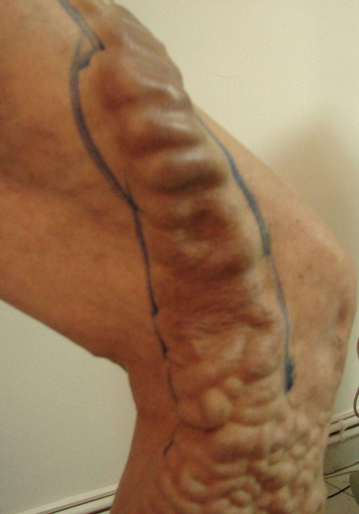 varicoză și tromboflebită)