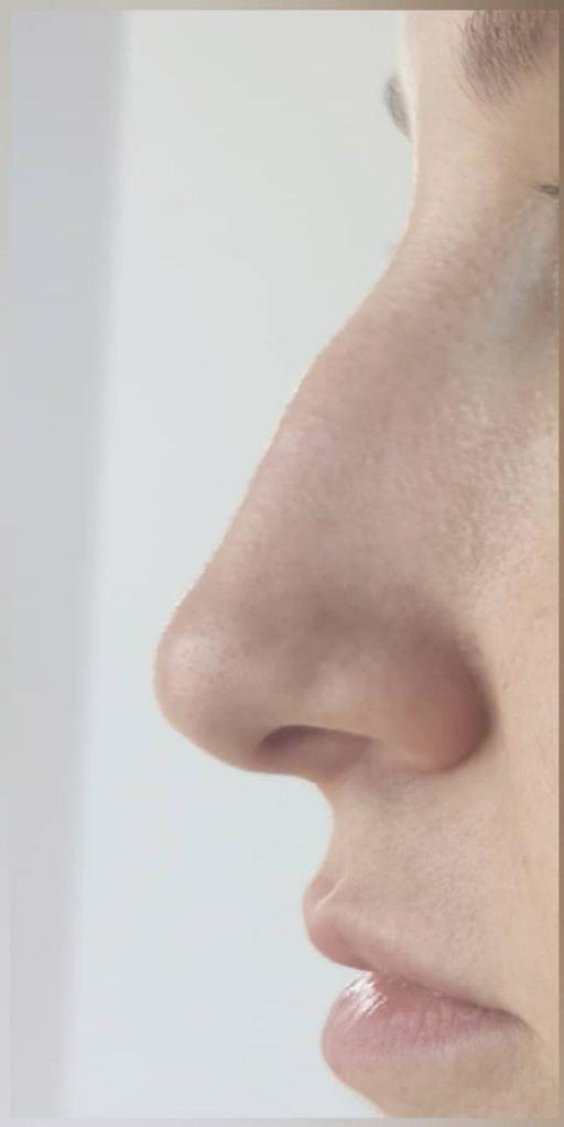 Before-Rinoplastie