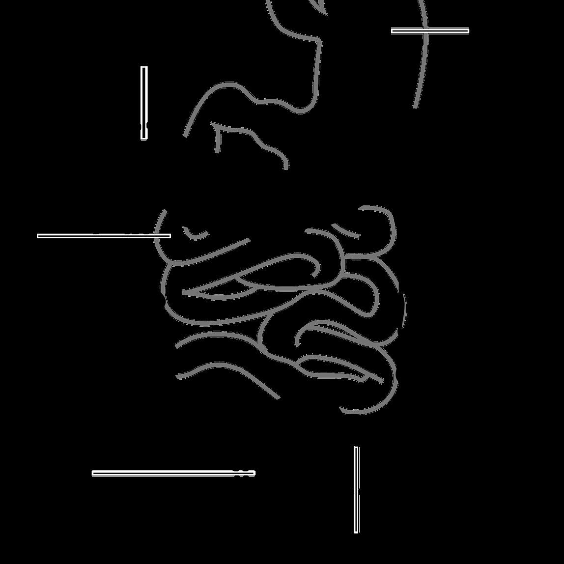 Hemoroizii Extern/Intern
